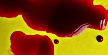 「血是非常不平凡的液體」--1901年第一屆諾貝爾生理學醫學奬