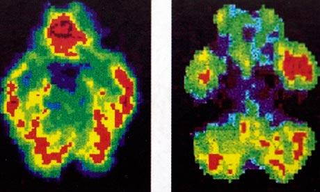 左圖:正常人的腦袋。右圖:殺人兇手, Antonio Bustamante。