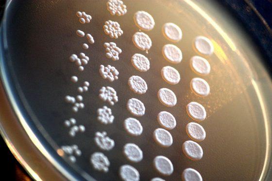 """Laboratoorne pagaripärm (Saccharomyces cerevisiae) agariplaadil."" by Rainis Venta - Own work. Licensed under CC BY-SA 3.0 via Wikimedia Commons - http://commons.wikimedia.org/wiki/File:Laboratoorne_pagarip%C3%A4rm_(Saccharomyces_cerevisiae)_agariplaadil..JPG#mediaviewer/File:Laboratoorne_pagarip%C3%A4rm_(Saccharomyces_cerevisiae)_agariplaadil..JPG"