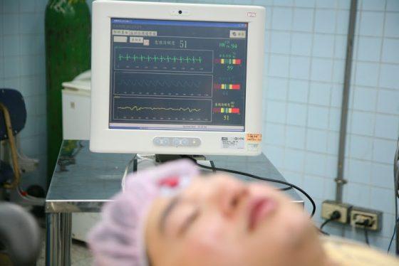 螢幕上就是麻醉監測系統的介面,將三種信號整合在同一畫面中,並顯示麻醉深度指標。(示範情境)