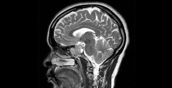 牛奶新發現:大腦抗氧化的新救星?