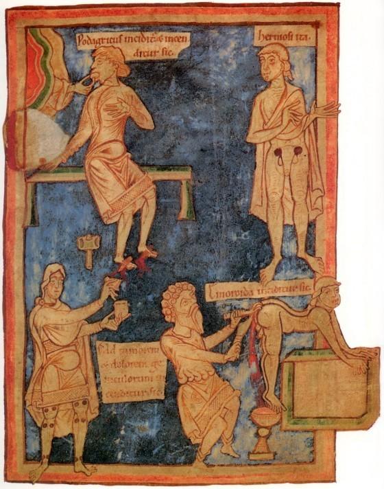 11th_century_English_surgery