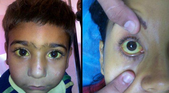 因為肝臟病變而引發的症狀-黃疸,病人的膚色會轉黃,眼白也會變成黃色。from: wikimedia