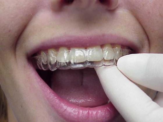 拆完牙套後,需長期帶著維持器,直到牙齒位置穩定。