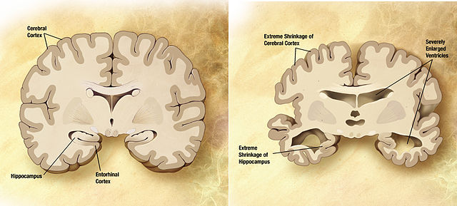640px-Alzheimer's_disease_brain_comparison