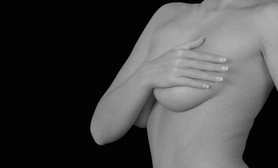 男生也有!不只給女生的副乳成因、預防與治療全攻略。圖 / MedPartner 提供