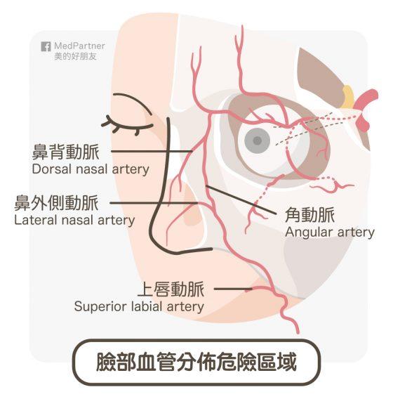玻尿酸注射失明_臉部危險血管