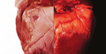 人的心臟(左)與豬的心臟(右)在結構上展現出驚人的相似性。圖/《BCC 知識 2017 年 1 月號》