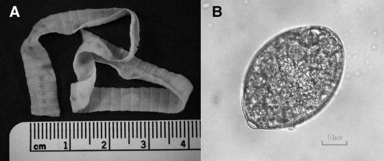 左為日本海裂頭絛蟲的節片,右為卵。圖/Ferric C. Fang et al., J. Clin. Microbiol, 2015.