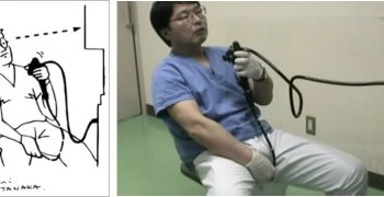 自己來肛肛好!不用假他人之手的大腸鏡──2018搞笑諾貝爾醫學教育獎
