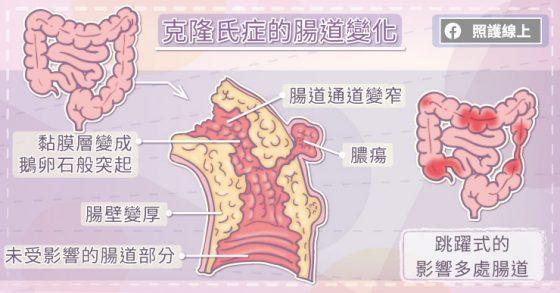 《长期嘴破、腹泻、体重减轻,当心克隆氏症》